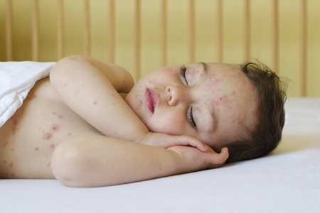春秋季节宝宝出疹子,妈妈如何正确应对