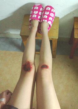 美女膝盖内涵图  妹子你的腿肿么了美女膝盖红了