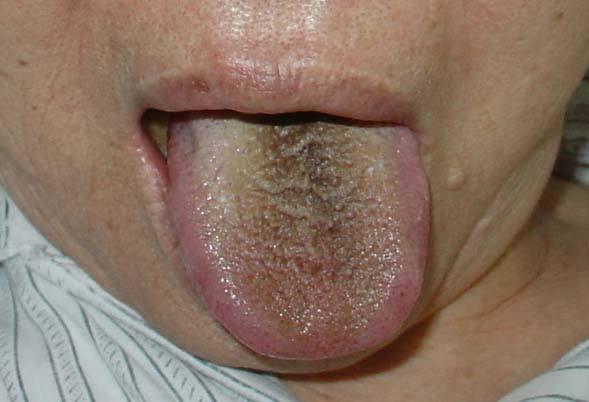 舌苔厚黄是怎么回事 身体是否健康从舌头看的出