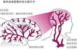 什么是脑卒中 这些细微的表现居然是它的早期症状