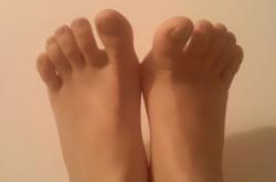 脚气的原因是什么呢?又是什么因素引起的