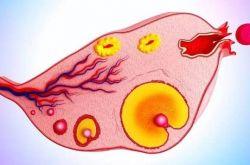 多囊卵巢综合症是怎么引起的 这么做可以有效预防哦